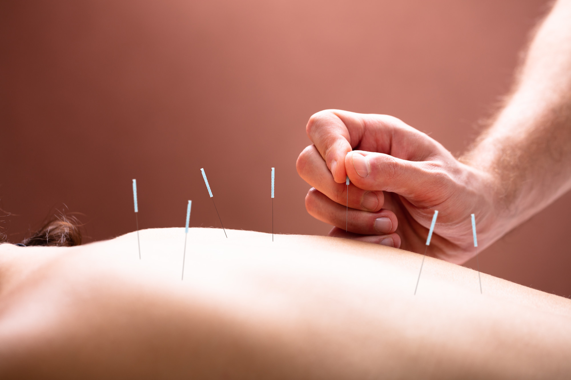 Person Undergoing Dry Needling