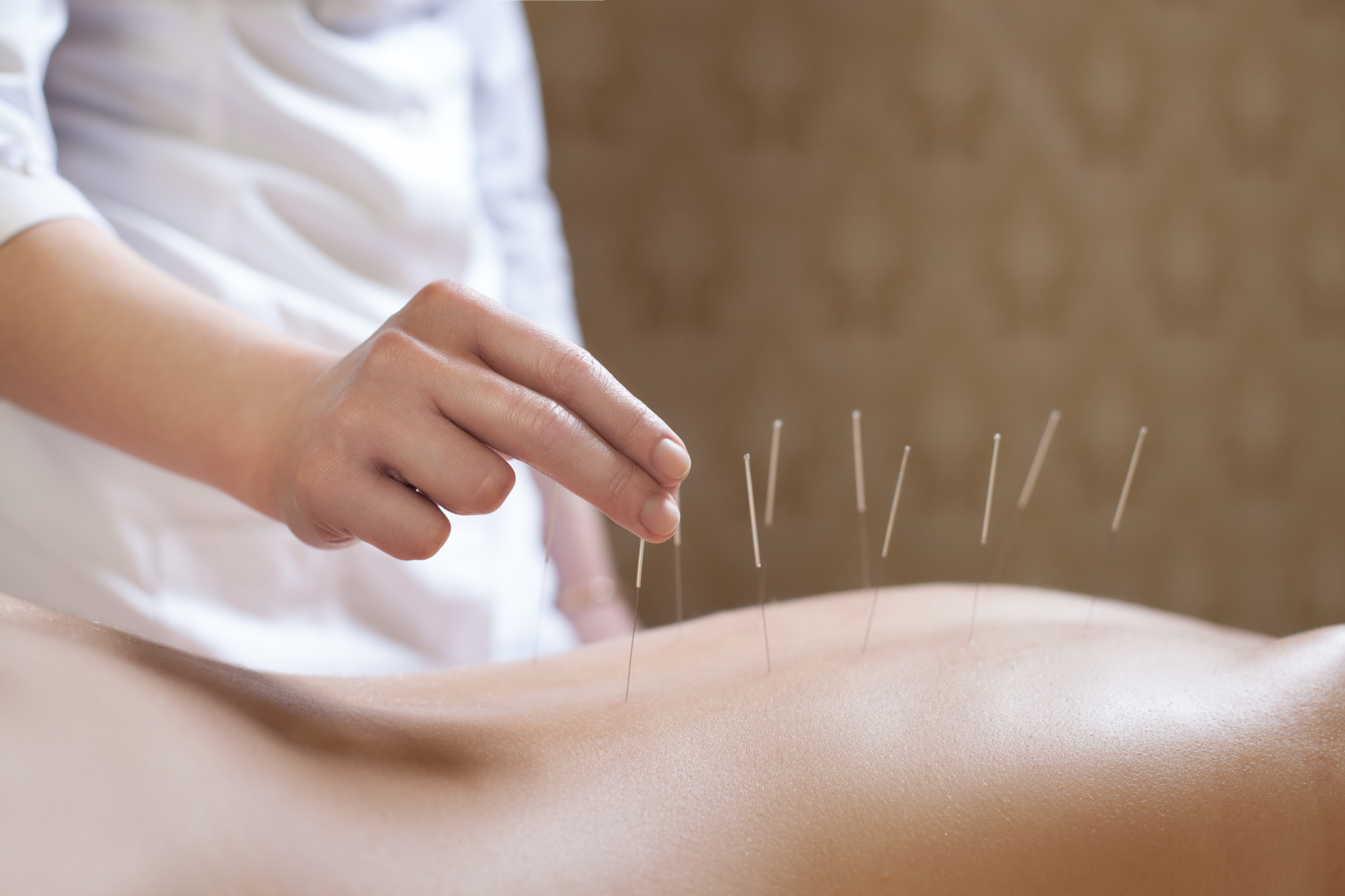 Acupuncture Procedure in Progress